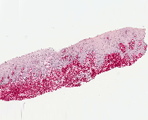 Biocompatibility of materials, histology