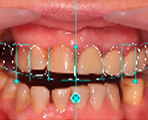 Digital smile and function planning